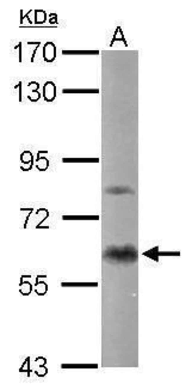 PKC alpha Rabbit anti-Human, Mouse, Polyclonal, Invitrogen 100 µL;