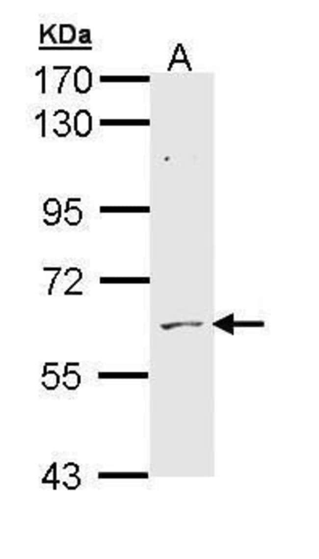ADCK1 Rabbit anti-Human, Mouse, Polyclonal, Invitrogen 100 µL; Unconjugated
