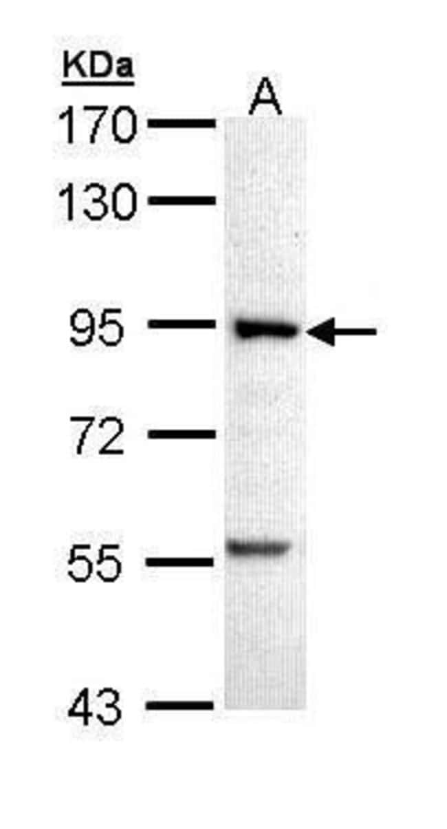PFKM Rabbit anti-Human, Mouse, Polyclonal, Invitrogen 100 µL; Unconjugated