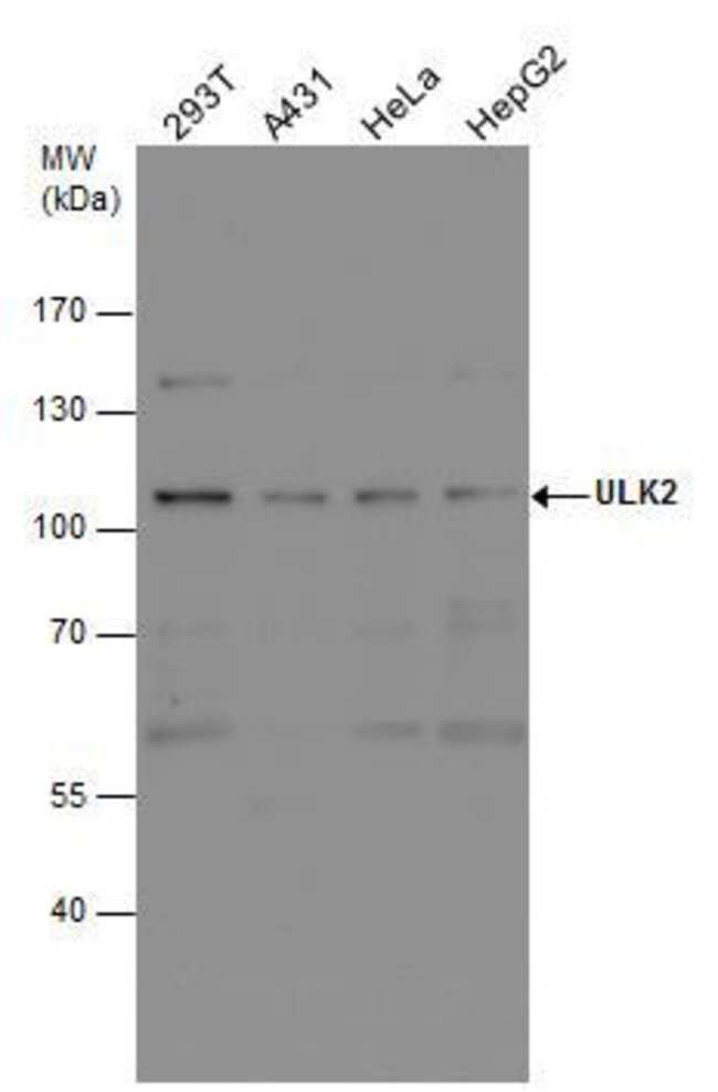 ULK2 Rabbit anti-Human, Mouse, Polyclonal, Invitrogen 100 µL; Unconjugated