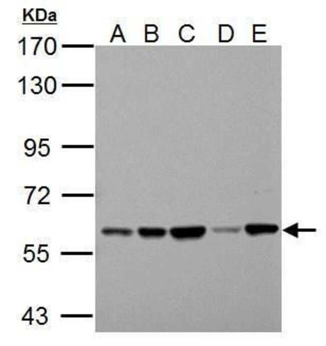 PKLR Rabbit anti-Human, Rat, Polyclonal, Invitrogen 100 µL; Unconjugated