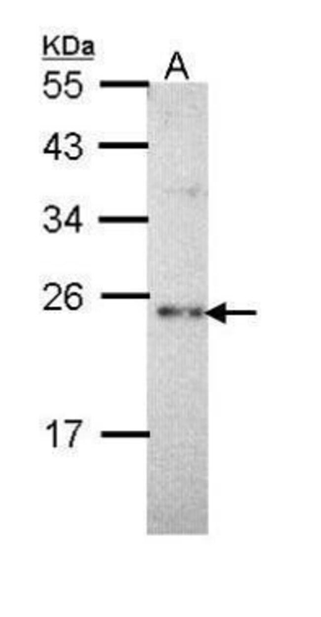 CHP1 Rabbit anti-Human, Polyclonal, Invitrogen 100 µL; Unconjugated