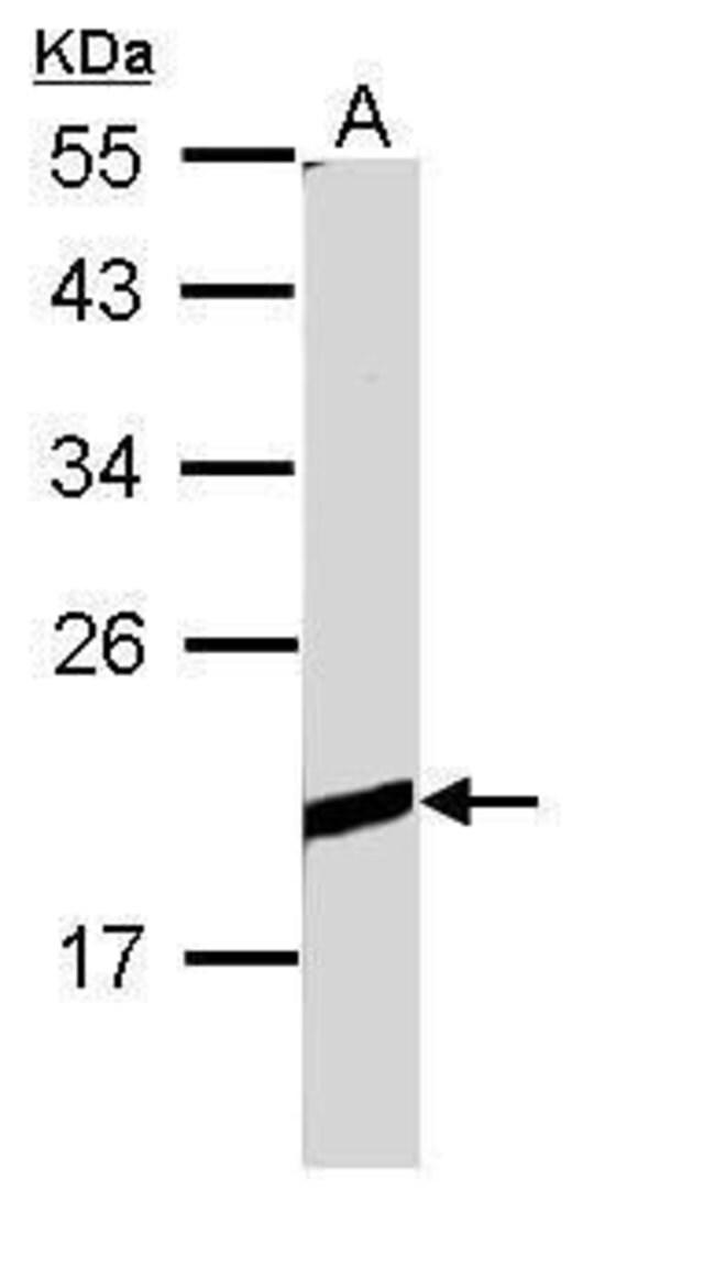 Bcl-B Rabbit anti-Human, Polyclonal, Invitrogen 100 µL; Unconjugated