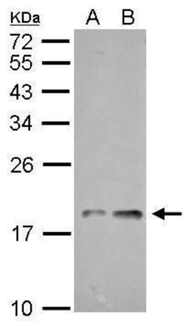 NDUFAB1 Rabbit anti-Human, Mouse, Rat, Polyclonal, Invitrogen 100 µL;