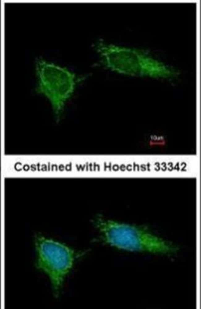 NDUFB5 Rabbit anti-Human, Mouse, Polyclonal, Invitrogen 100 µL; Unconjugated