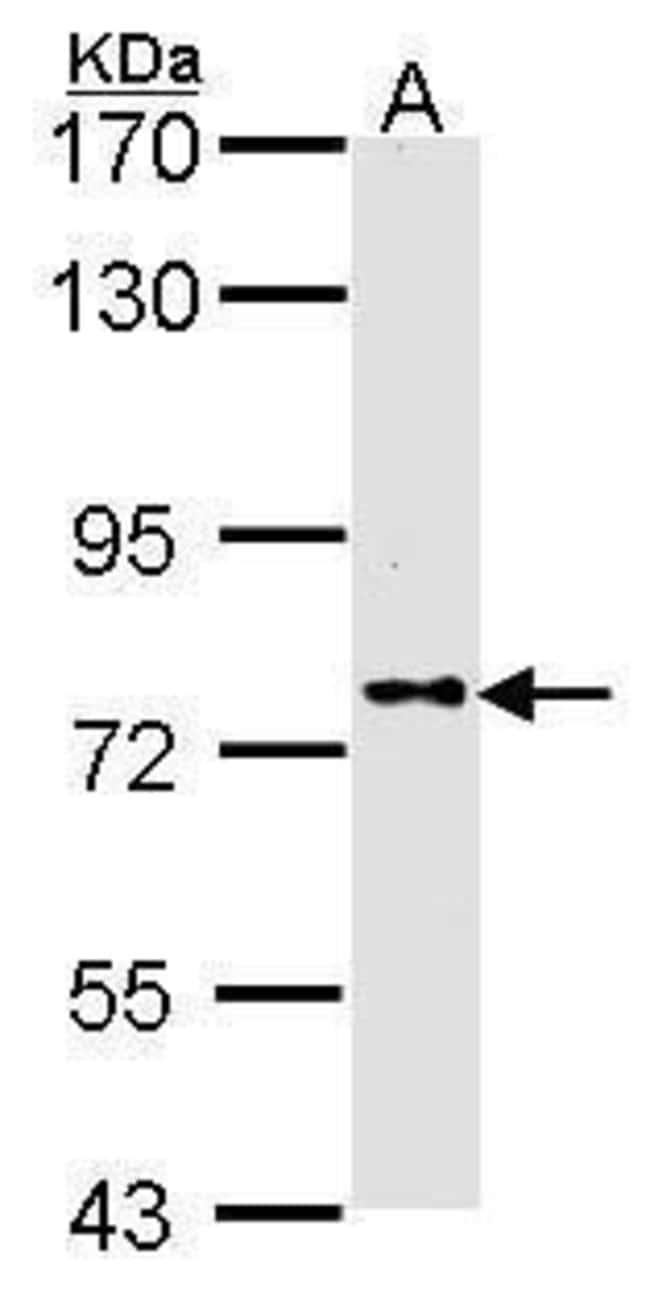 DPP8 Rabbit anti-Human, Polyclonal, Invitrogen 100 µL; Unconjugated
