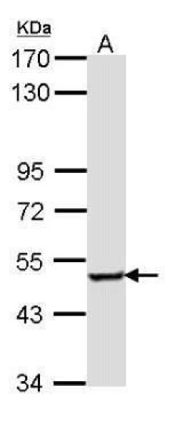 SESN3 Rabbit anti-Human, Mouse, Rat, Polyclonal, Invitrogen 100 µL;