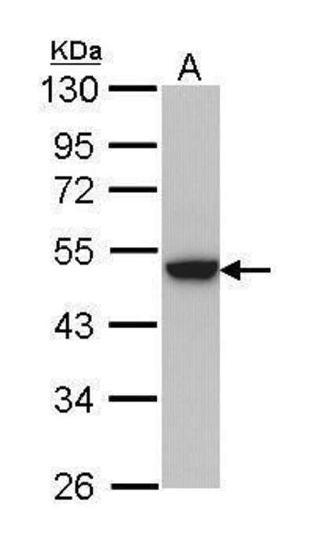 Cytokeratin 31 Rabbit anti-Human, Polyclonal, Invitrogen 100 µL; Unconjugated