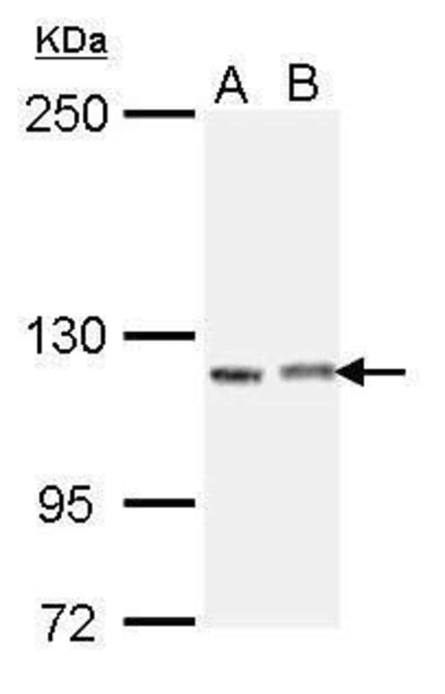 IGSF3 Isoform 2 Rabbit anti-Human, Polyclonal, Invitrogen 100 µL;