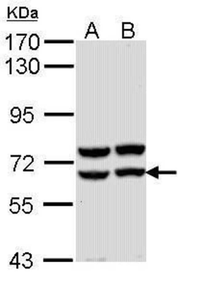 Pancreatic Amylase Rabbit anti-Human, Polyclonal, Invitrogen 100 µL;