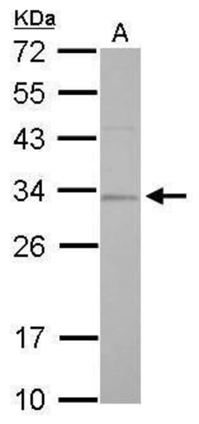 RPA2 Rabbit anti-Human, Mouse, Rat, Polyclonal, Invitrogen 100 µL;