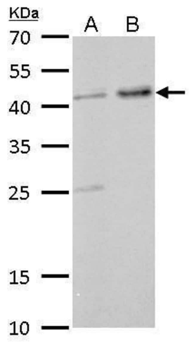 GNAS Rabbit anti-Human, Mouse, Rat, Polyclonal, Invitrogen 100 µL;