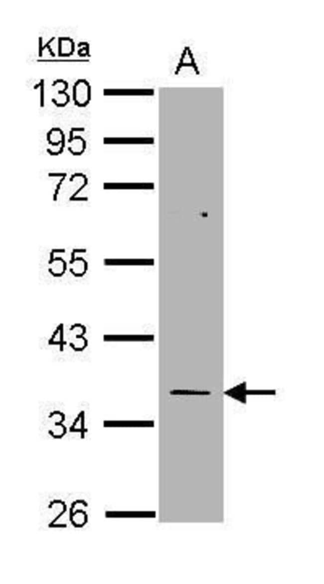 Thymidylate Synthase Rabbit anti-Human, Polyclonal, Invitrogen 100 µL;