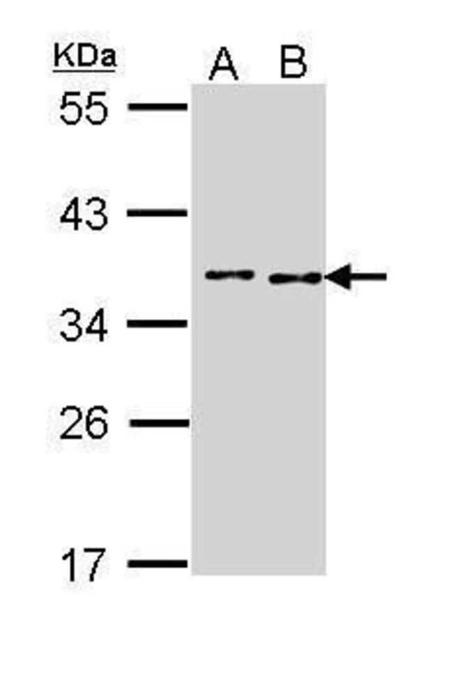 TOK-1 Rabbit anti-Human, Polyclonal, Invitrogen 100 µL; Unconjugated