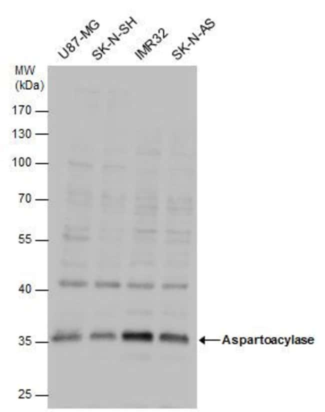 Aspartoacylase Rabbit anti-Human, Mouse, Polyclonal, Invitrogen 100 µL;