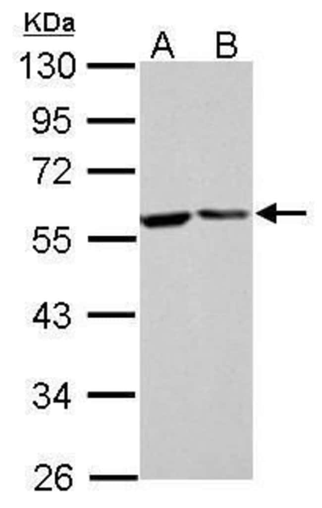 FKBP4 Rabbit anti-Human, Mouse, Rat, Polyclonal, Invitrogen 100 µL;