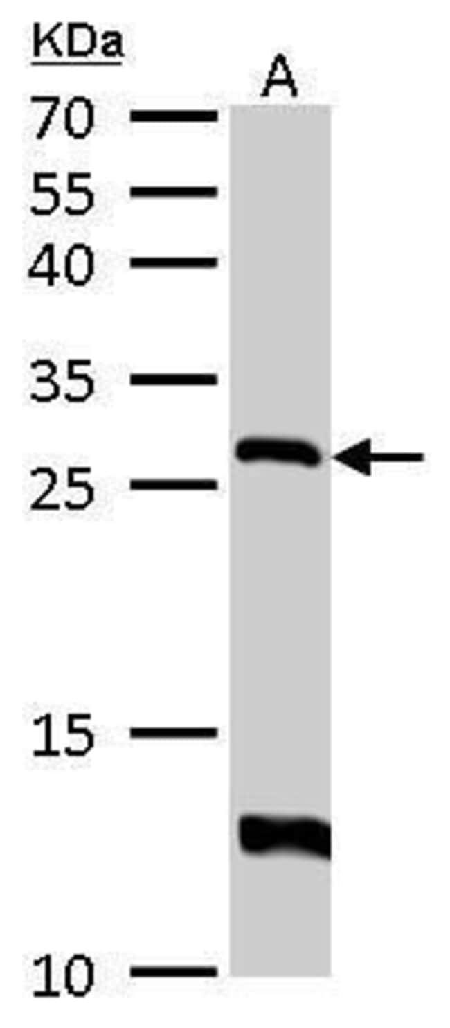 HPRT1 Rabbit anti-Human, Mouse, Polyclonal, Invitrogen 100 µL; Unconjugated