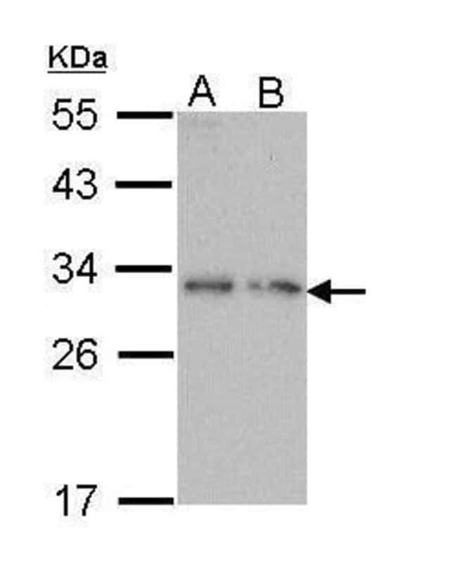 Prodynorphin Rabbit anti-Human, Polyclonal, Invitrogen 100 µL; Unconjugated