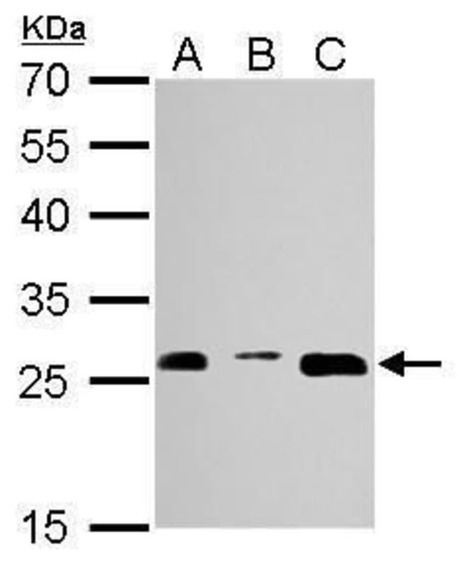 PSMA3 Rabbit anti-Human, Mouse, Polyclonal, Invitrogen 100 µL; Unconjugated