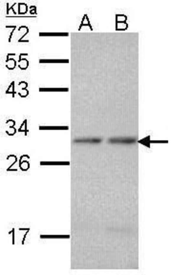 PSMA7 Rabbit anti-Human, Mouse, Polyclonal, Invitrogen 100 µL; Unconjugated