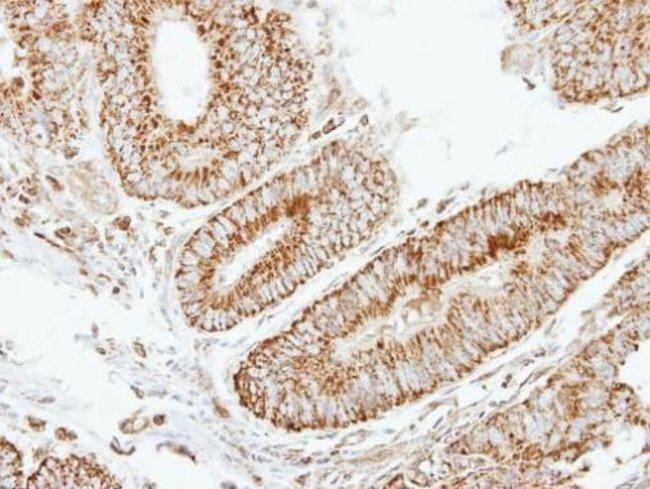 eIF2b beta Rabbit anti-Human, Polyclonal, Invitrogen 100 µL; Unconjugated