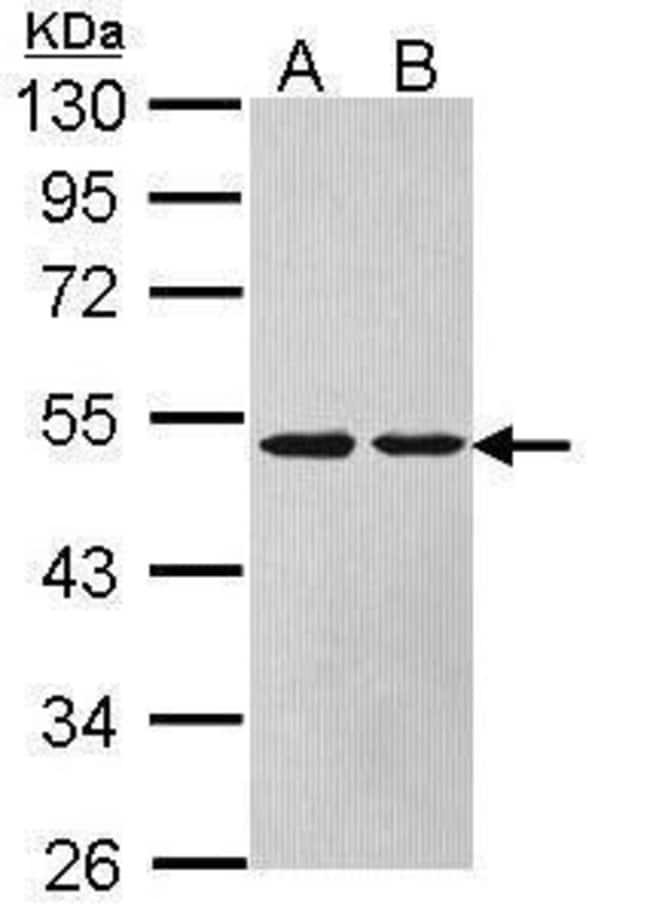 ASL Rabbit anti-Human, Mouse, Polyclonal, Invitrogen 100 µL; Unconjugated