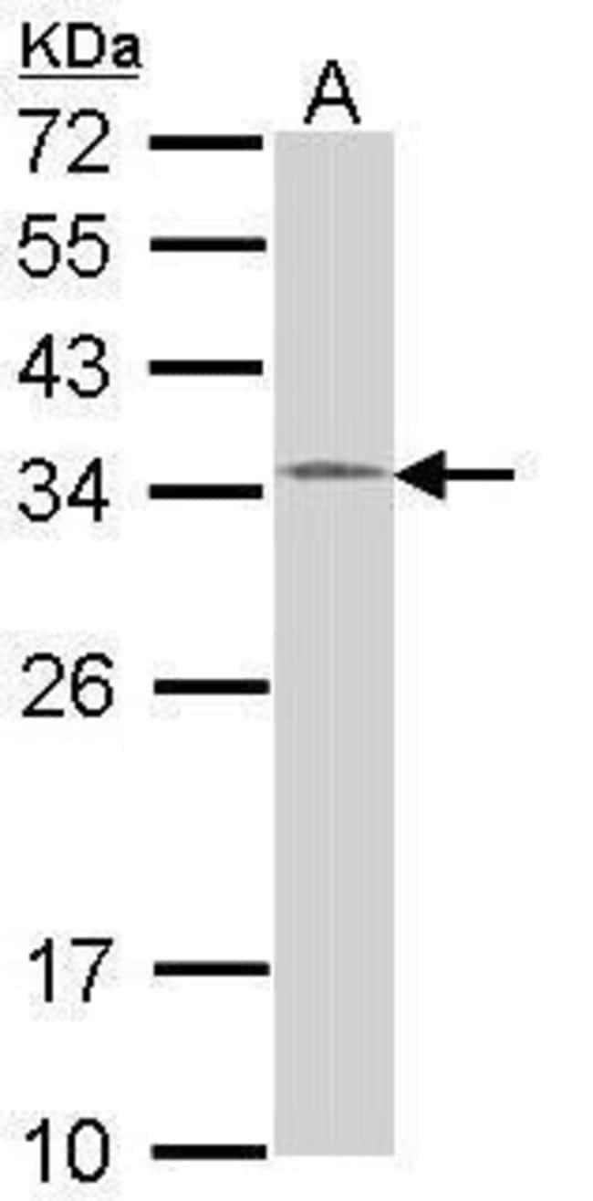 HUS1 Rabbit anti-Human, Mouse, Polyclonal, Invitrogen 100 µL; Unconjugated