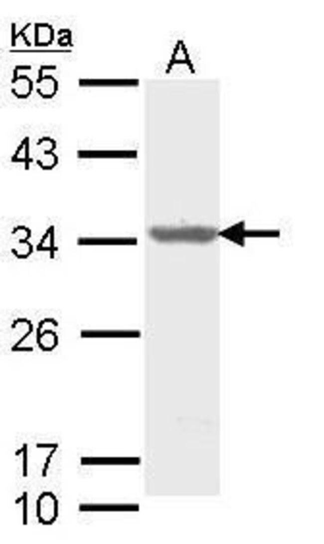 ALY Rabbit anti-Human, Mouse, Polyclonal, Invitrogen 100 µL; Unconjugated