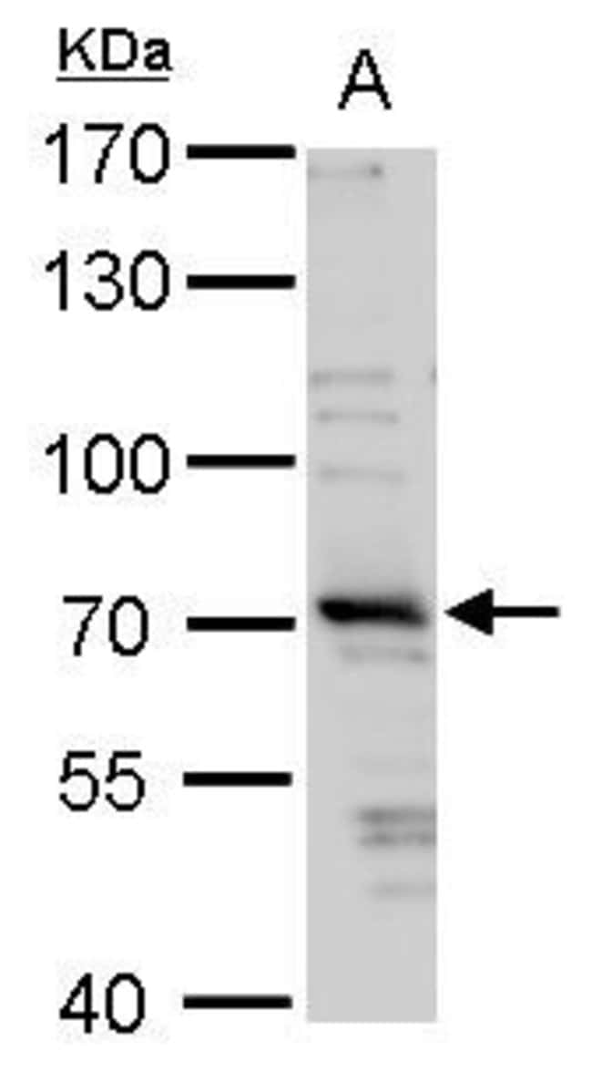 TRIM32 Rabbit anti-Human, Polyclonal, Invitrogen 100 µL; Unconjugated