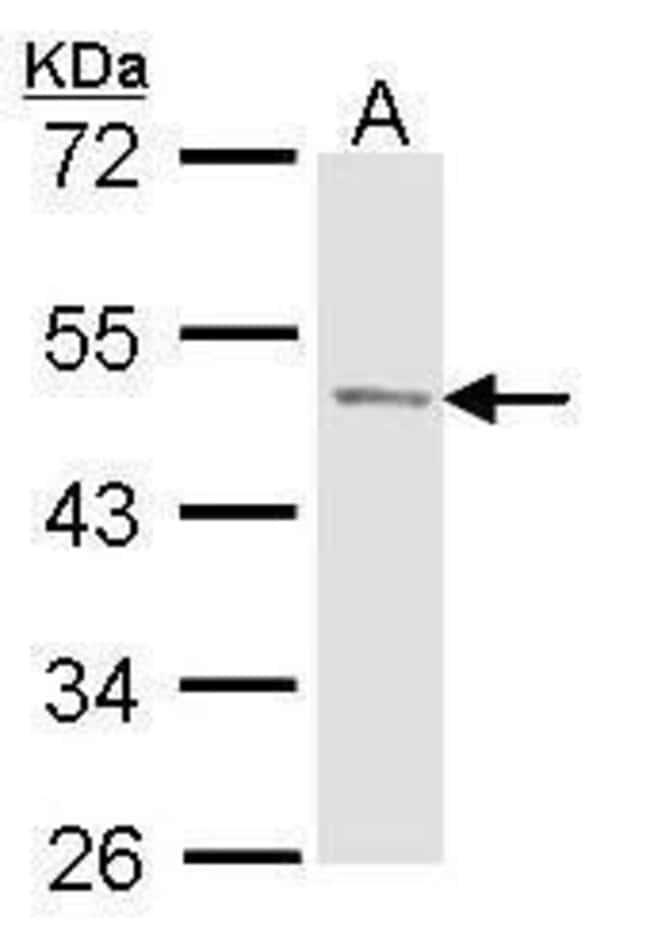Prostate Specific Acid Phosphatase Rabbit anti-Human, Polyclonal, Invitrogen
