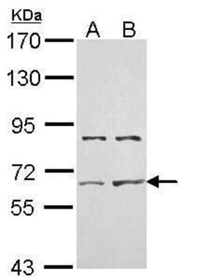 ACVR2A Rabbit anti-Human, Polyclonal, Invitrogen 100 µL; Unconjugated