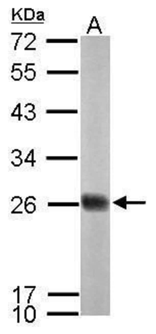 NDUFS8 Rabbit anti-Human, Mouse, Rat, Polyclonal, Invitrogen 100 µL;