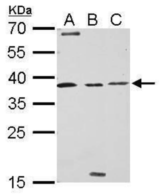 Livin Rabbit anti-Human, Polyclonal, Invitrogen 100 µL; Unconjugated