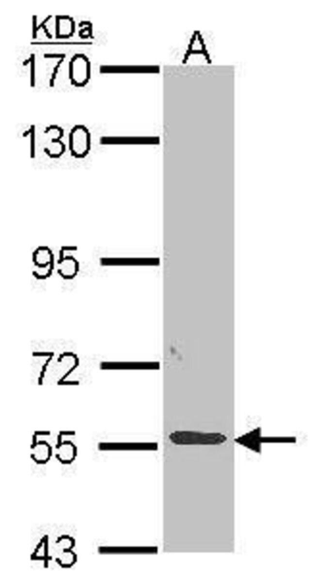 ALPPL2 Rabbit anti-Human, Polyclonal, Invitrogen 100 µL; Unconjugated