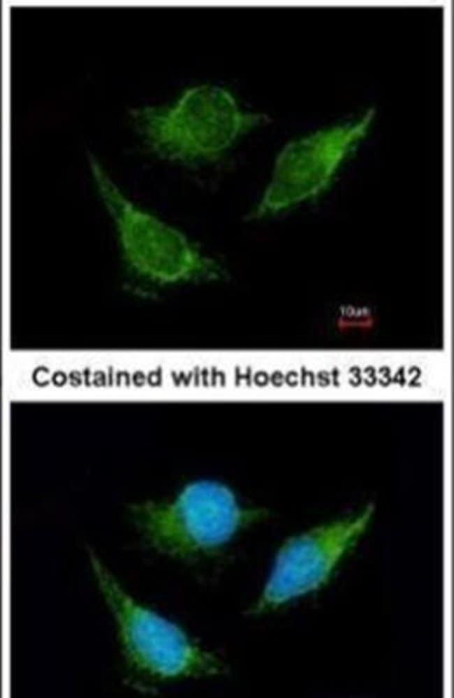 IVD Rabbit anti-Human, Mouse, Rat, Polyclonal, Invitrogen 100 µL;