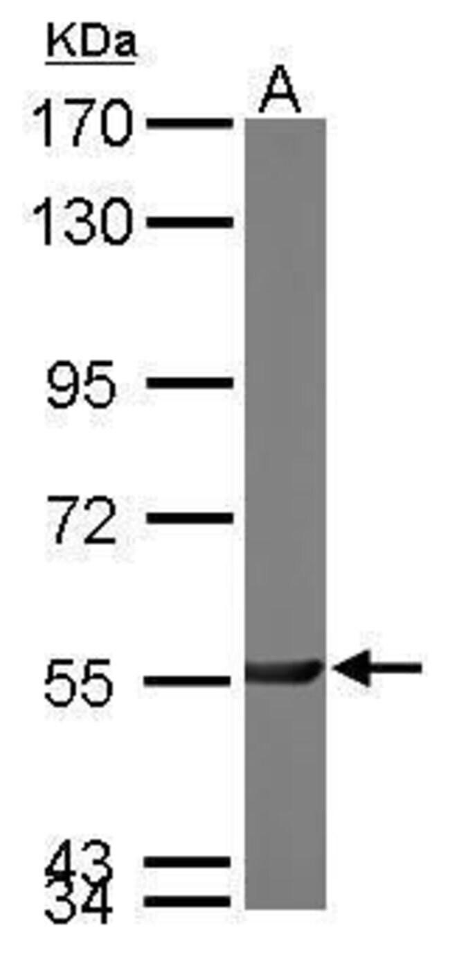 PGM3 Rabbit anti-Human, Mouse, Polyclonal, Invitrogen 100 µL; Unconjugated