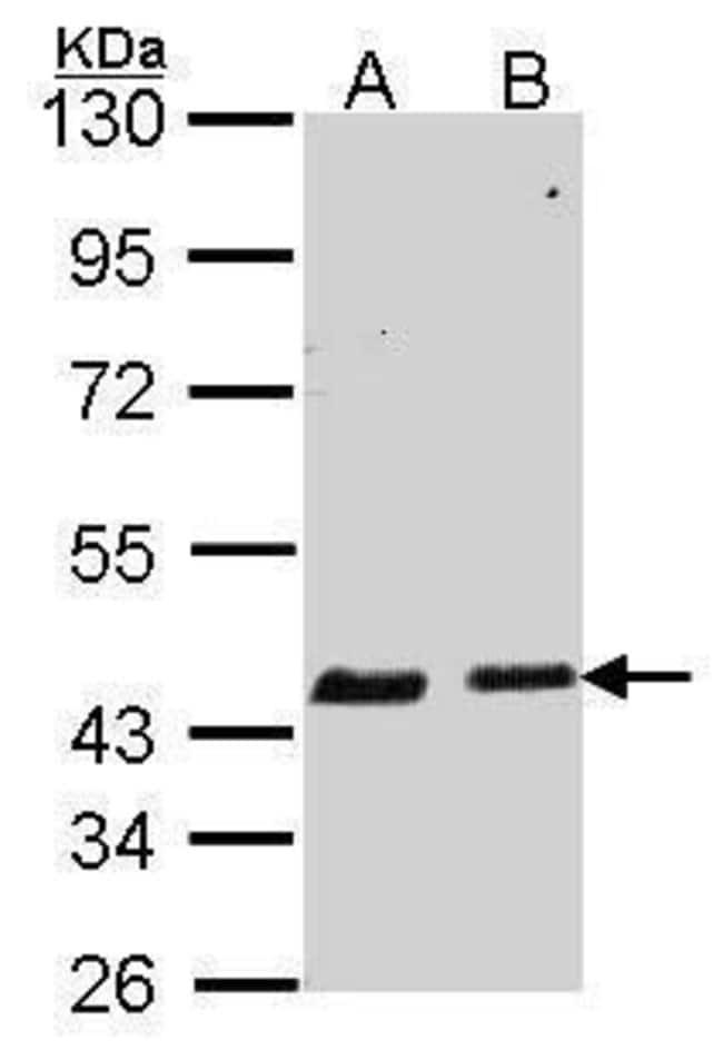 SERPINB6 Rabbit anti-Bovine, Human, Polyclonal, Invitrogen 100 µL;