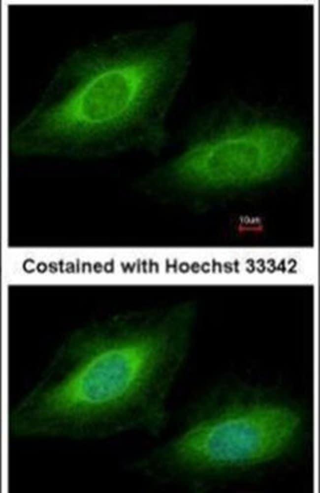TSSC1 Rabbit anti-Human, Polyclonal, Invitrogen 100 µL; Unconjugated