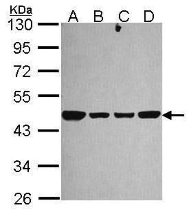 NDUFS2 Rabbit anti-Human, Mouse, Polyclonal, Invitrogen 100 µL; Unconjugated