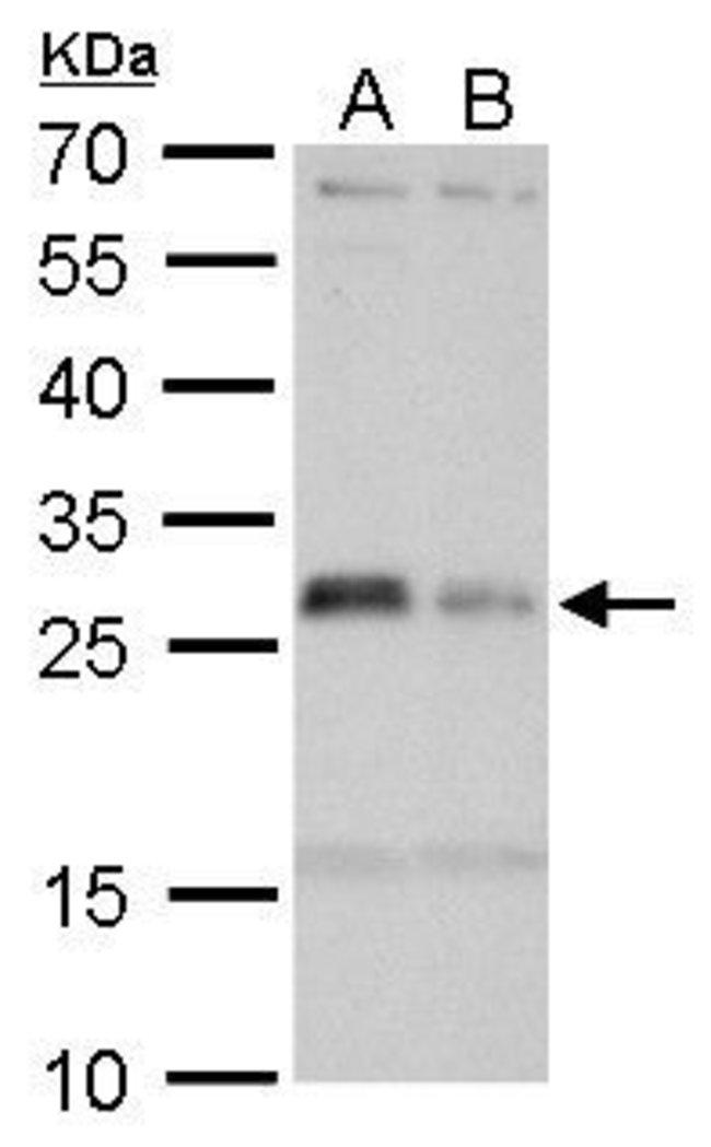HLA-DMA Rabbit anti-Human, Polyclonal, Invitrogen 100 µL; Unconjugated