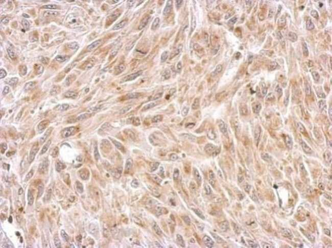 Chromogranin C Rabbit anti-Human, Mouse, Rat, Polyclonal, Invitrogen 100