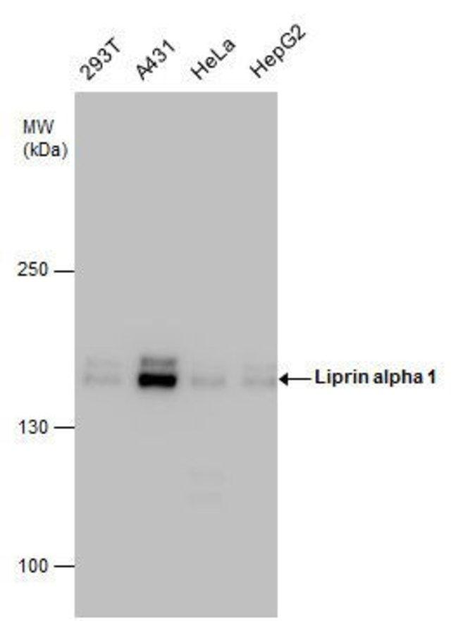 PPFIA1 Rabbit anti-Human, Mouse, Polyclonal, Invitrogen 100 µL; Unconjugated