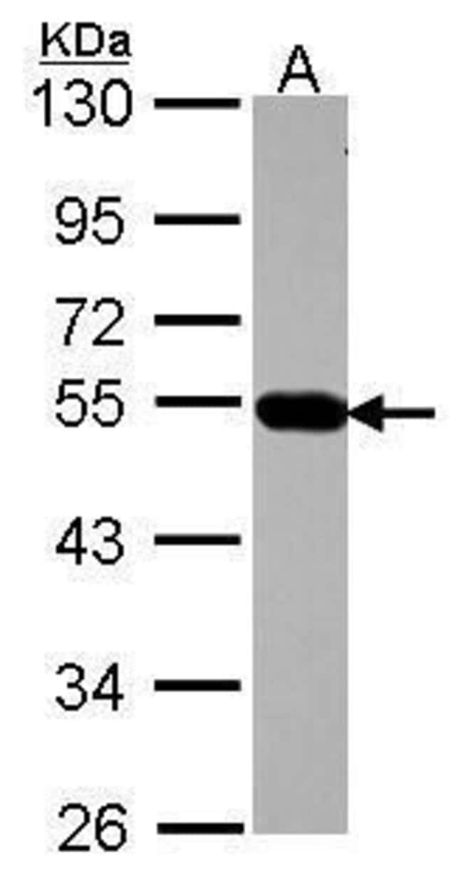 AP4M1 Rabbit anti-Human, Polyclonal, Invitrogen 100 µL; Unconjugated