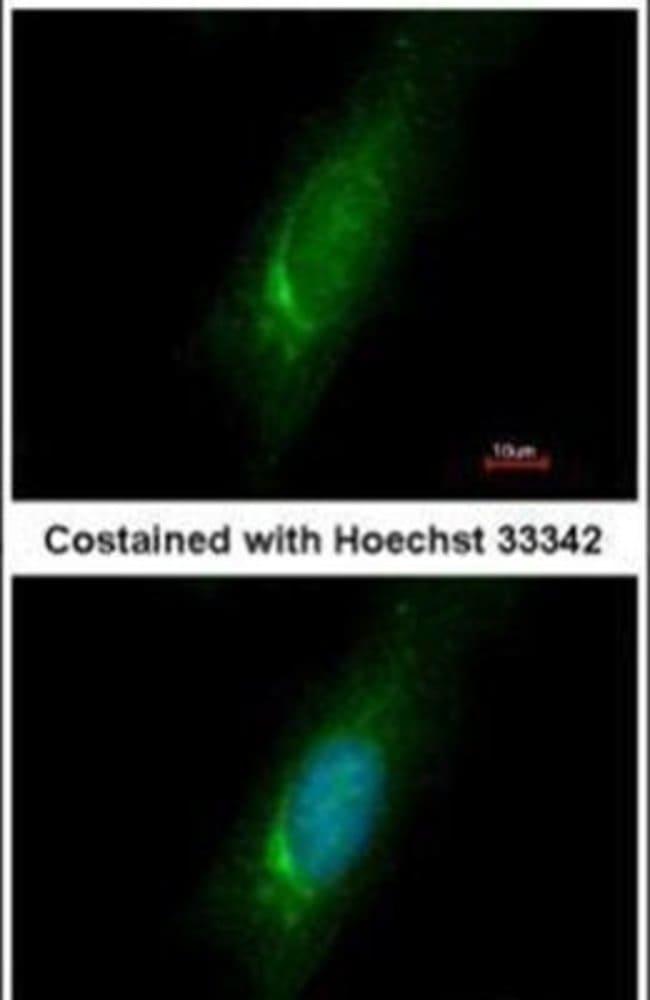 HOMER3 Rabbit anti-Human, Polyclonal, Invitrogen 100 µL; Unconjugated
