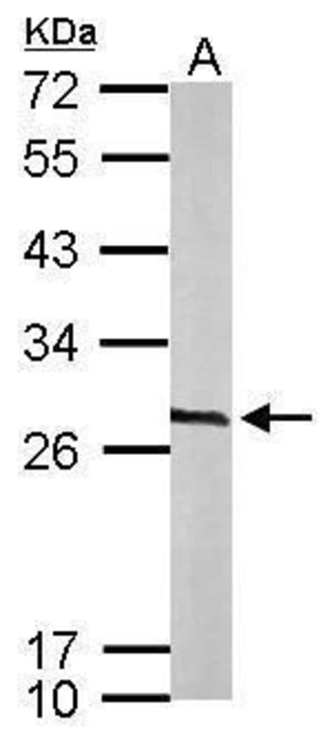 Calcyclin Rabbit anti-Human, Mouse, Polyclonal, Invitrogen 100 µL;