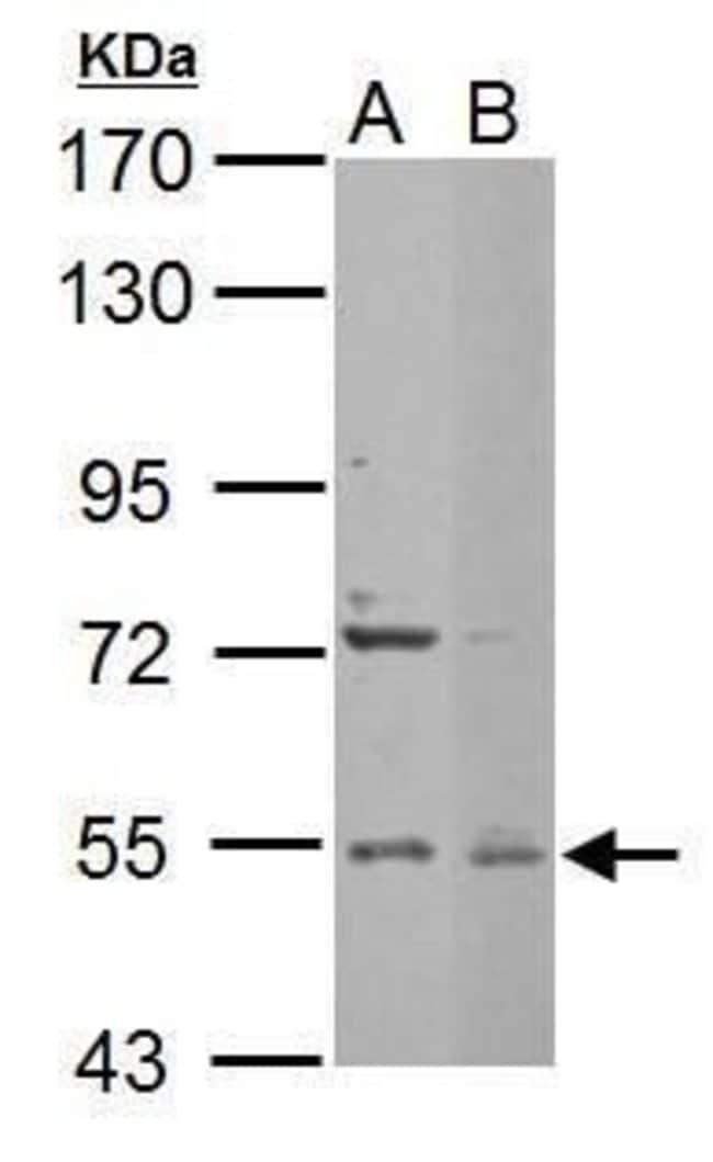 EDC3 Rabbit anti-Human, Mouse, Polyclonal, Invitrogen 100 µL; Unconjugated