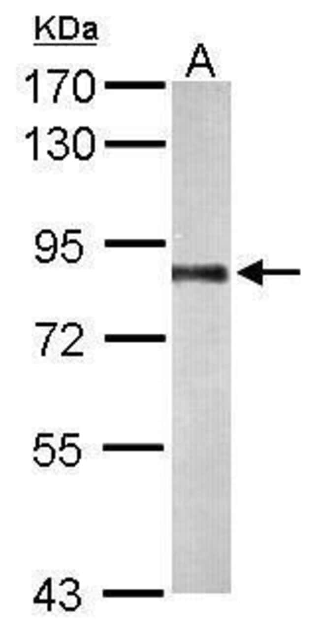 PNPase Rabbit anti-Human, Mouse, Polyclonal, Invitrogen 100 µL; Unconjugated