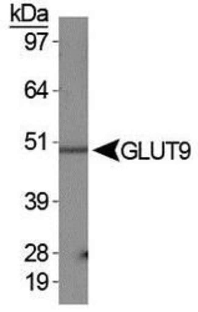 GLUT9 Rabbit anti-Human, Mouse, Non-human primate, Polyclonal, Invitrogen
