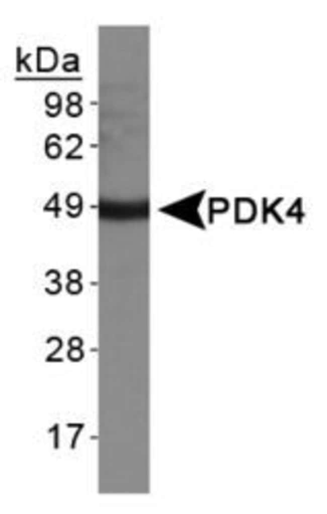 PDK4 Rabbit anti-Human, Mouse, Polyclonal, Invitrogen 100 µL; Unconjugated