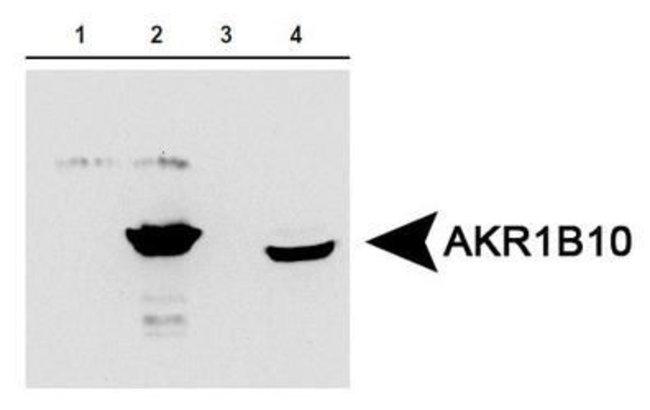 AKR1B10, Polyclonal, Invitrogen 100µL; Unconjugated